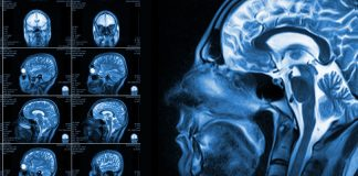 Get The Best and Most Reliable Radiology Service With Imaging Associates